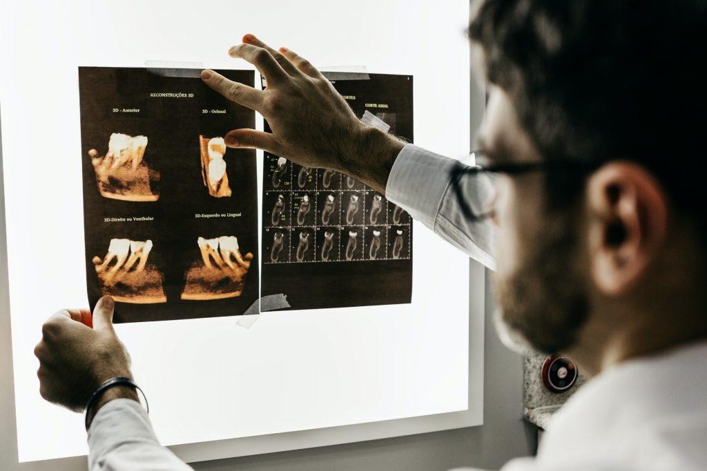 La Gingivectomía debe ser realizada por especialistas